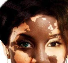 dia-mundial-vitiligo-1973547