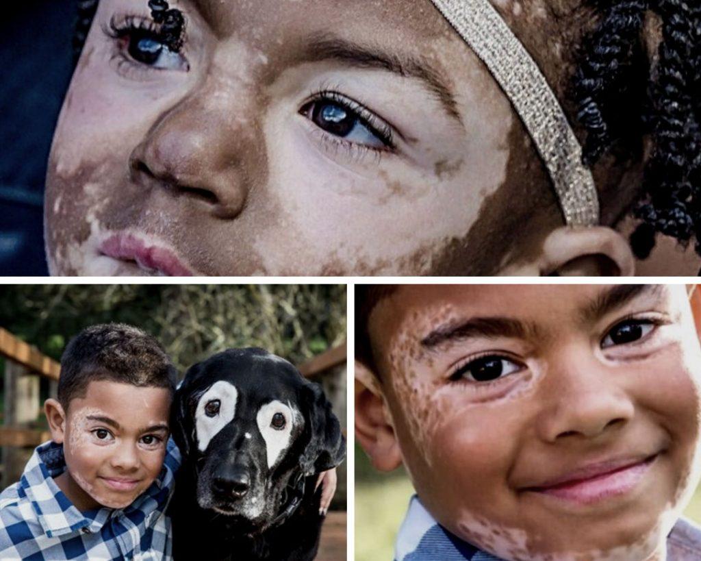 modeli-z-vitiligo-7122550