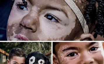 modeller-med-vitiligo-7122550
