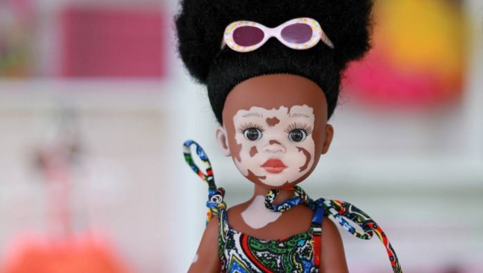 poupée-dépigmentation-8673850