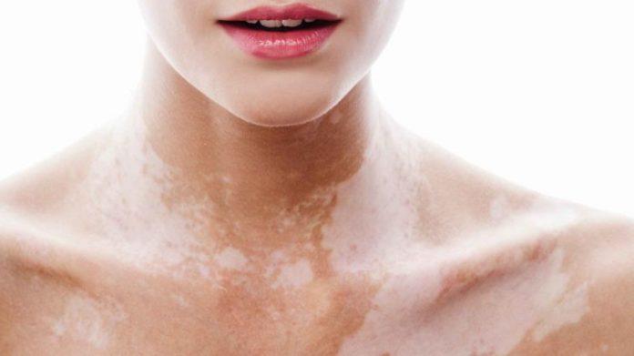 vitiligo-758x426-7063574