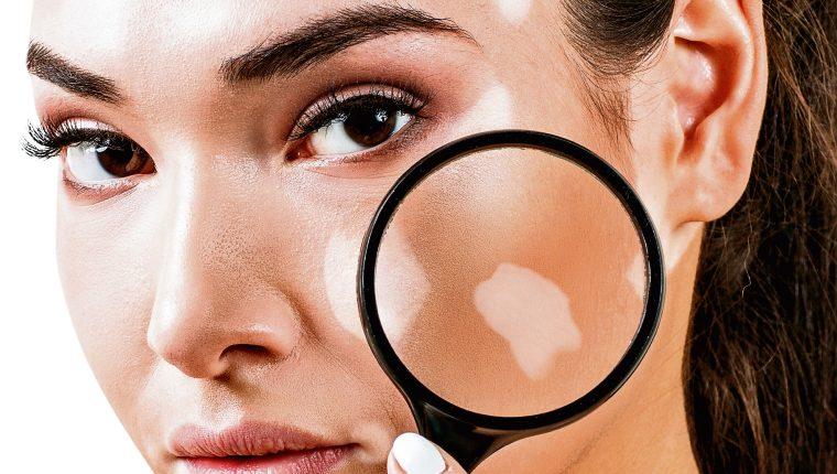 vitiligo-cara-2598248