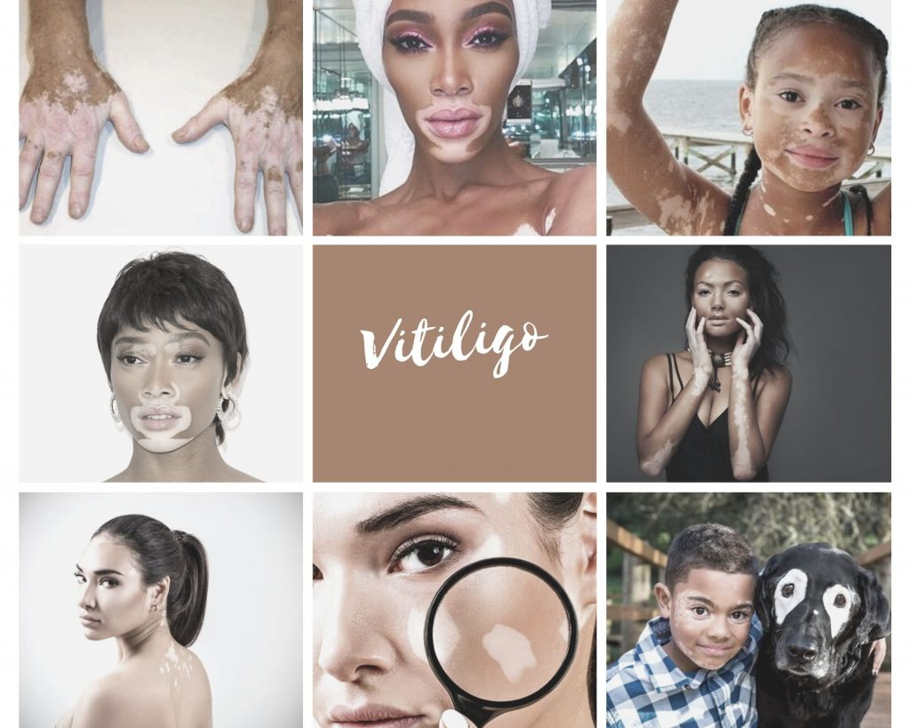 vitiligo-collage-3653881