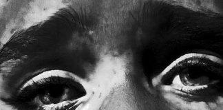 vitiligo-smrtonosna-6637494