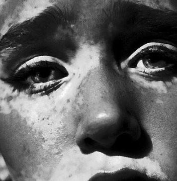 vitiligo-surmav-6637494