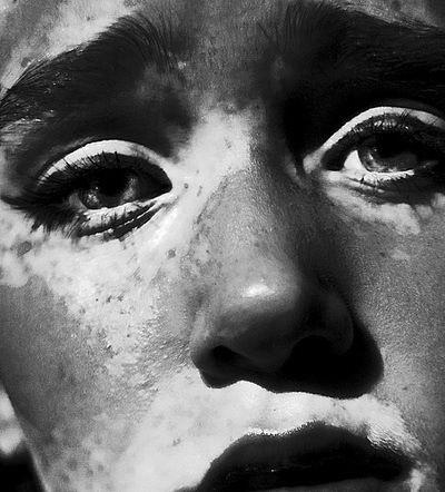 vitiligo-dødbringende-6637494