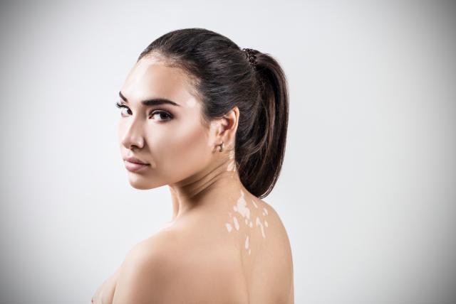 vitiligo-espaldajpeg-9271148