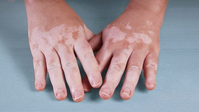 vitiligo-hands-3879867