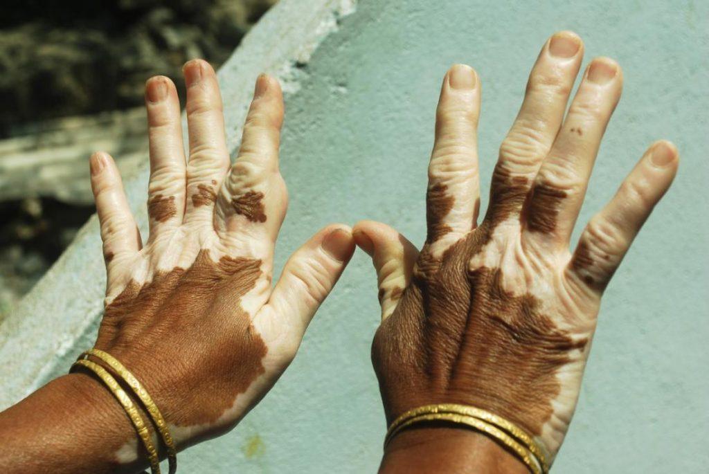 vitiligo-on-hands-3830832-6100135
